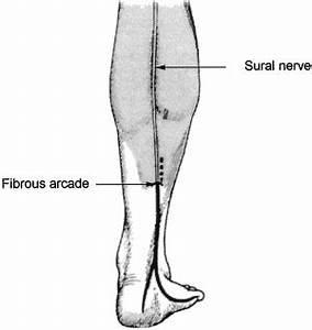 sciatic leg pain relief