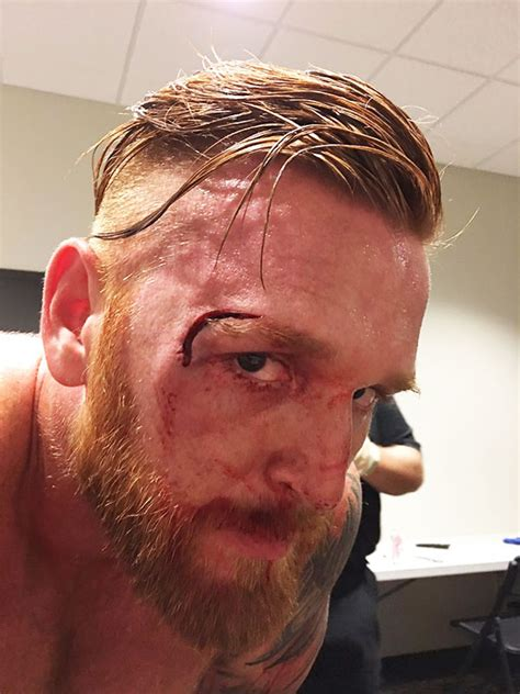 heath slaters head injury  wwe stars major gash suffered  fight hollywoodlife