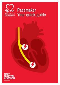 Pacemakers - How Do Pacemakers Work