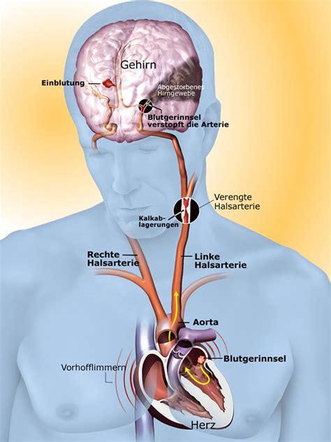schlaganfall diagnose  symptoms treatment