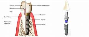What Is An Implant Abutment