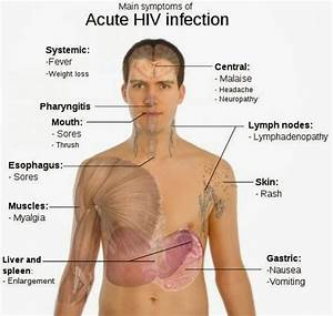 Information about Hiv Symptoms In Women After 3 Months - yousense info