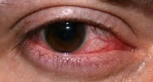Fuoco Di Sant Antonio Interno Herp 232 S De La Corn 233 E Ulc 232 Re Dentritique Ophtalmologie