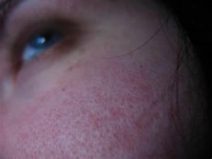 Mittel Gegen Wespen Im Rolladenkasten : gro e poren verkleinern hausmittel gegen gro e poren im gesicht hausmittelhexe ~ Frokenaadalensverden.com Haus und Dekorationen