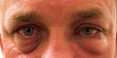 Could Swollen Eyes Be The Beginning Of Dry Eyes? Cliradex®