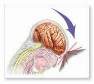 Препараты для лечения остеохондроза спины