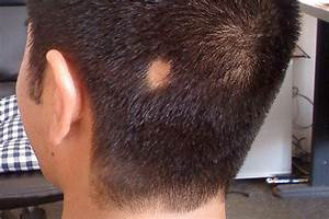 Remedies For Alopecia Areata Can Natural Treatments Help