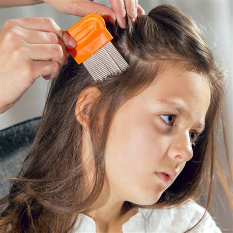 Disease Outbreak Control Division   Head Lice ('Ukus)