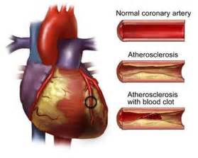 Cardiovascular Disease is linked to Cardiovascular Diseases And Disorders