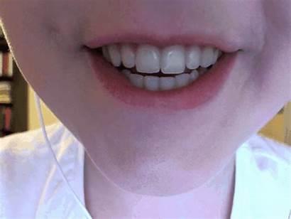 Lip Bite Smile Lips Gifs