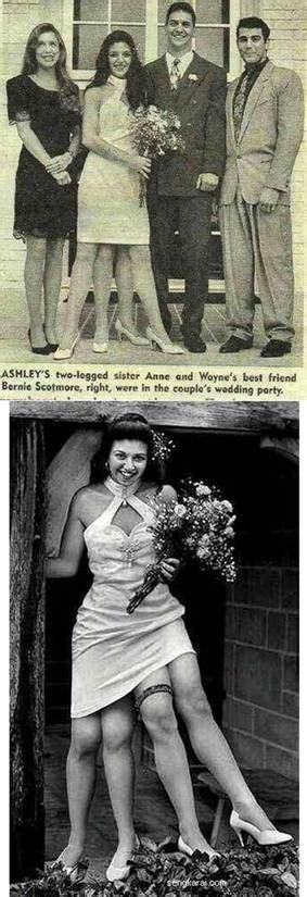 foto  berkaki empatgambar gambar aneh
