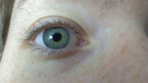 central heterochromia  tumblr