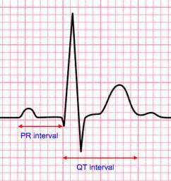 Intervals for EKG ECG Interpretation