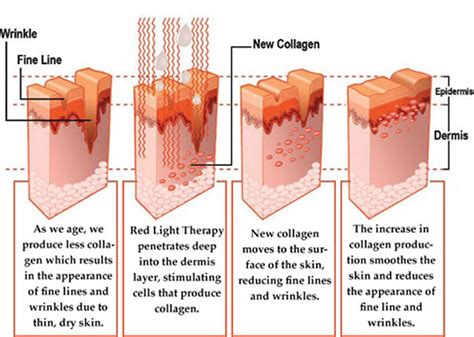 RED LIGHT THERAPY – Salt Therapy Grotto in Naples, FL