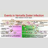 Neonatal Varicella | 638 x 359 jpeg 89kB
