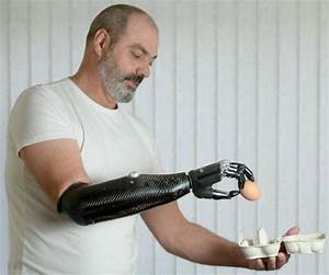 SEE: UK man gets amazing new robotic arm - NY Daily News