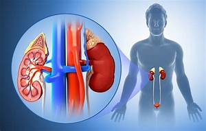 Kidney Infection  Causes  Symptoms  Diagnosis  And Treatment