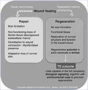 Schematic Overview Of Wound Healing  Focused On The Major