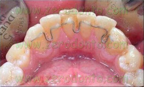 ortodonzia invisibile contro ortodonzia estetica