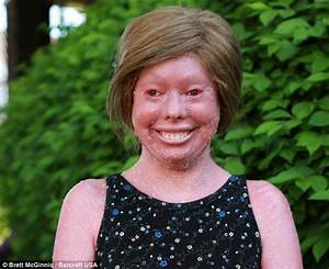 Teenager suffers rare skin condition preventing her from ...