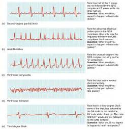 heart conditions are shown. From top to bottom, the arrhythmias ...  Heart Diseases Arrhythmia
