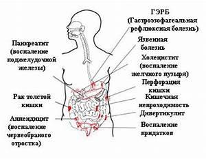 Лечение болей в животе от геморроя