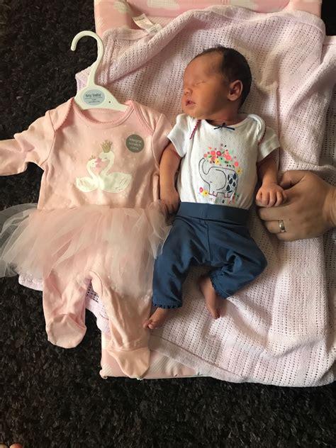 Help 32 Weeks Baby Measuring Small Femur Possible