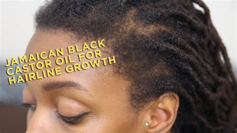 Product Review: Jamaican Black Castor Oil for Hairline