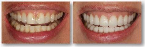 teeth enamel erosion philadelphia pa worn teeth