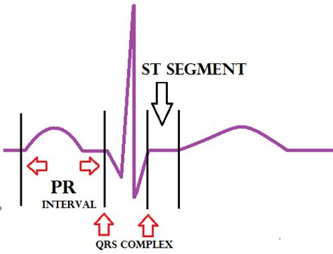 interval diagram wiring diagram and circuit schematic