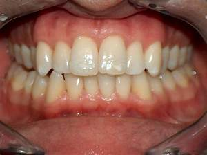 Invisalign Results for Bassam H. | Before & After