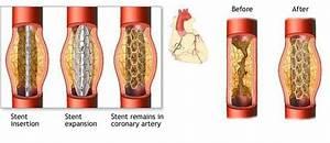 Coronary Angioplasty With Hybrid Valves