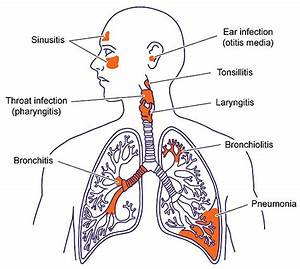 Upper Respiratory Tract Infection  Causes  Symptoms