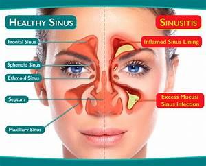 Sinus Pressure And Season Change