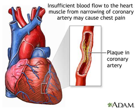 unstable angina medlineplus medical encyclopedia