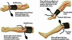 Ways To Take A Manual Blood Pressure