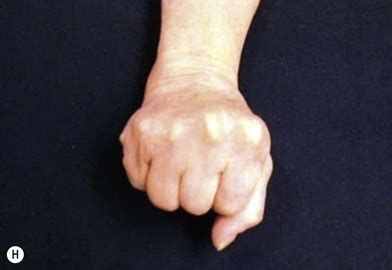 osteoarthritis   hand  wrist plastic surgery key