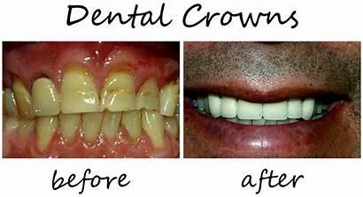 Dental Crowns Smiles Dentist Ba Smile Implants