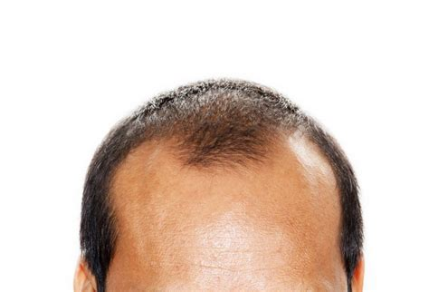 Mature Hairline vs Balding: The Quick Facts - JuveTress