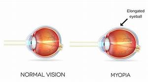 Myopia  Symptoms  Causes And Treatment