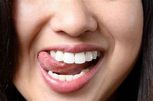 Oral Thrush  Your Natural Guide For Diagnosing And Fixing
