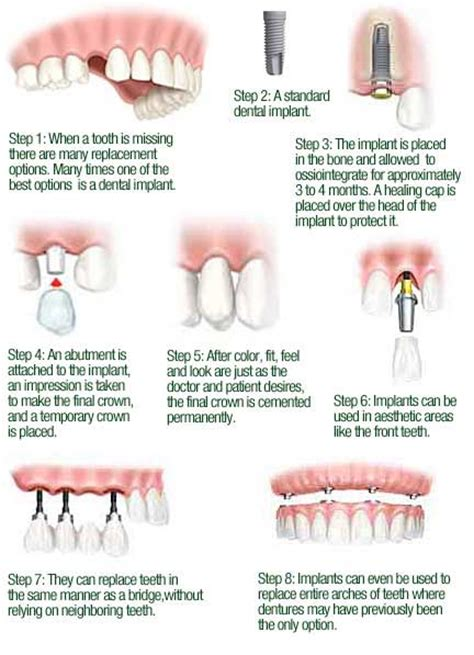 oral surgery  dental implants