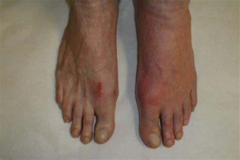 gout arthritis bed mattress sale