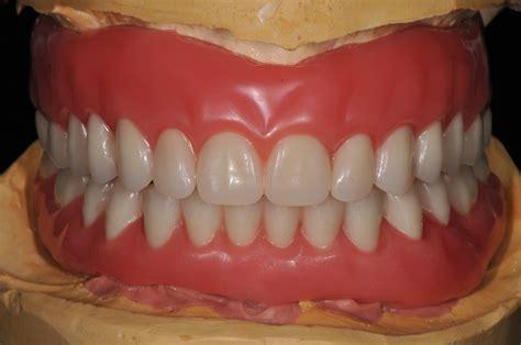 full dentures art dental lab