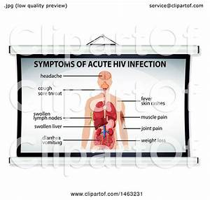 Clipart Of A Medical Diagram Of Symptoms Of Acute Hiv Infection