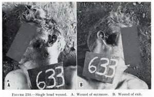 WW1 Shrapnel Wounds Injuries