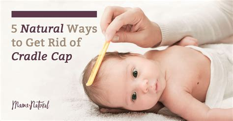 Cradle Cap 5 Natural Ways To Get Rid Of It For Good
