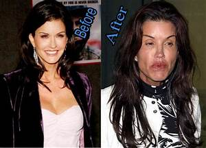 30 Celebrities who had Plastic Surgery Gone Wrong WTF  Buzzflop en 2018  Pinterest