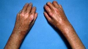 10 Diabetic Skin Problems   Everyday Health