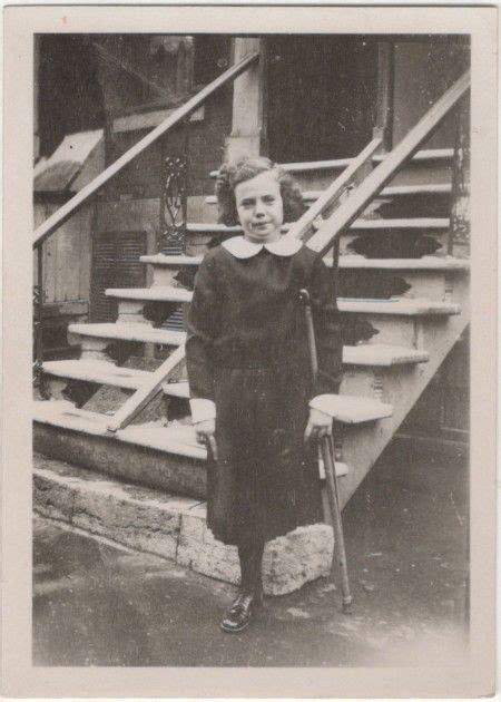 One Legged Girl 1920s Amputee Girl 1920s Girl